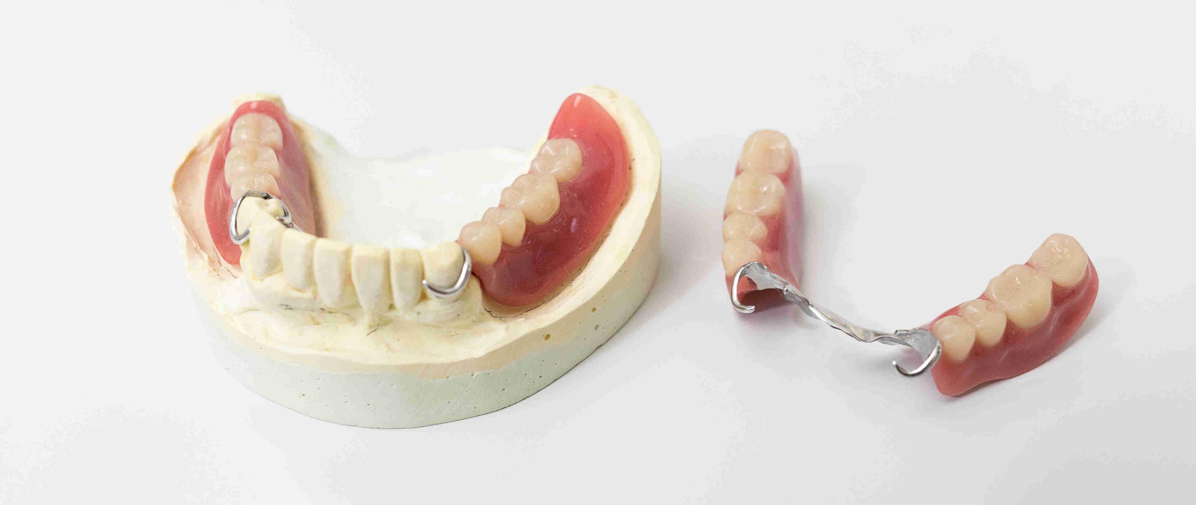 技工士常駐|白河の須藤歯科医院