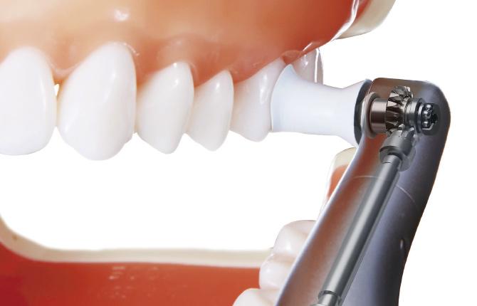歯の着色除去|白河の須藤歯科医院