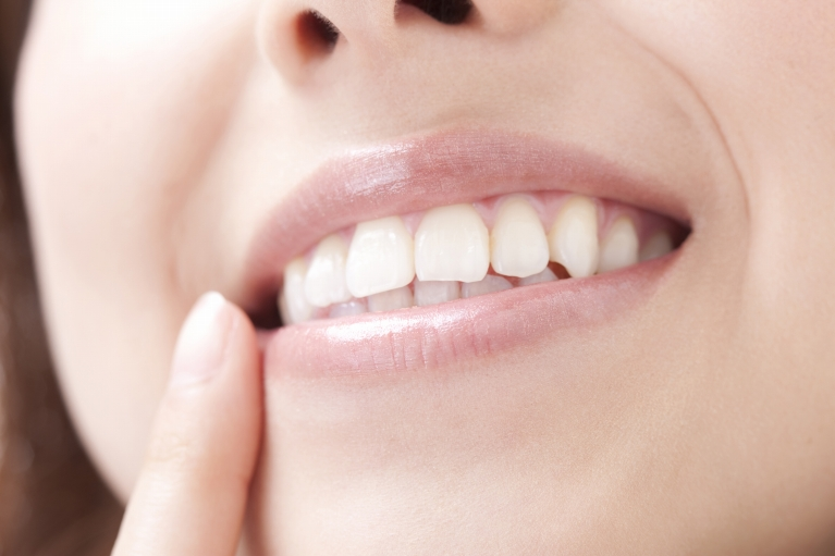 ホームホワイトニング|白河の須藤歯科医院