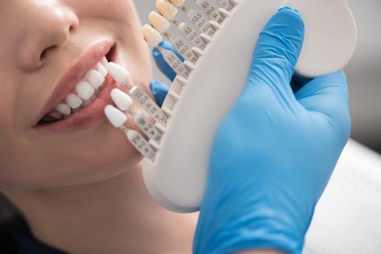 シェードの確認|白河の須藤歯科医院