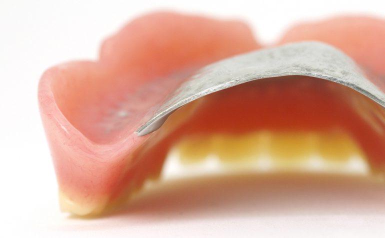 入れ歯の調整|白河の須藤歯科医院