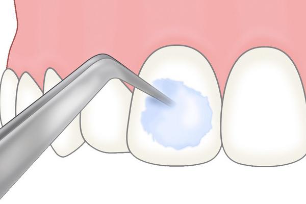 フッ素塗布|白河の須藤歯科医院