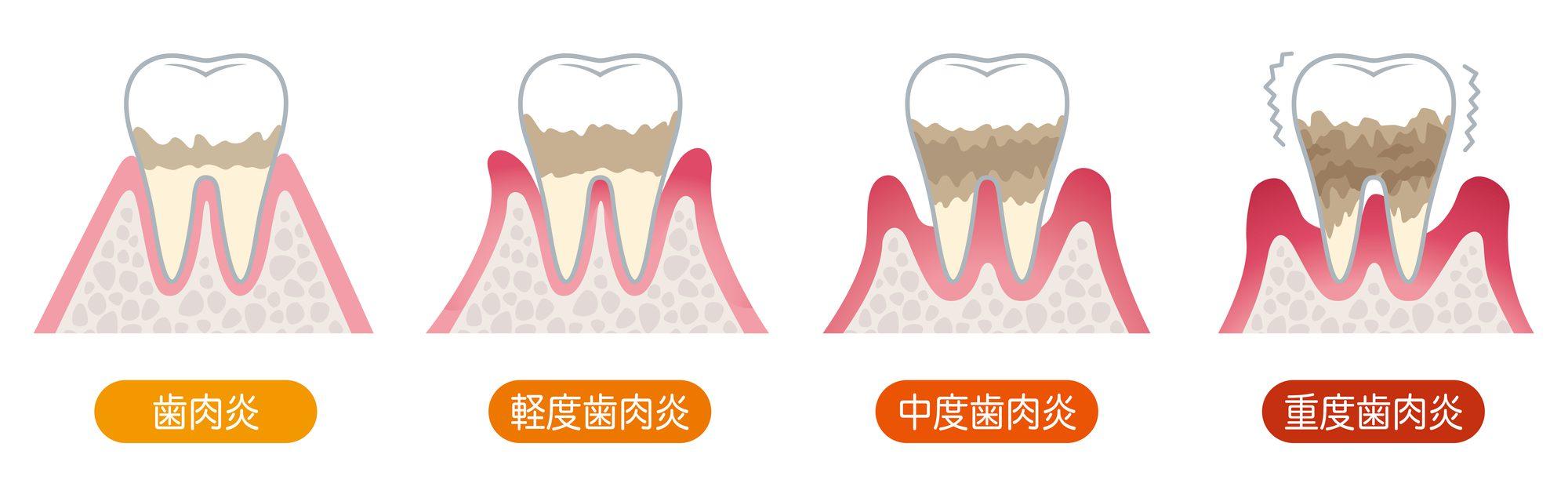 歯周病の進行|白河の須藤歯科医院